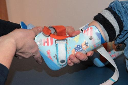 Praxis Dr. Wenner, Anpassen einer Kinder-Fuß-Orthese